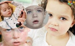 Bebeklerde Su Çiçeği Belirtileri,Teşhisi ve Tedavisi