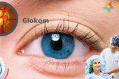 Glokom Hastalığı (Göz Tansiyonu) Nedir? Nedenleri, Belirtileri, Teşhisi ve Tedavisi