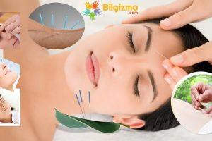 Akupunktur Nedir? Nasıl Yapılır? Ne İşe Yarar?