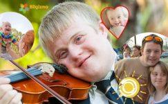 Down Sendromu Nedir? Belirtileri, Teşhisi ve Tedavisi