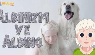Albinizm (Albino Hastalığı) Nedir? Belirtileri, Teşhisi ve Tedavisi